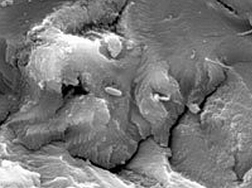 gas bugs methanegenerating bacteria on a coal samp